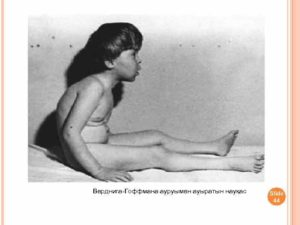 Атрофия мышечная спинальная: симптомы и терапия