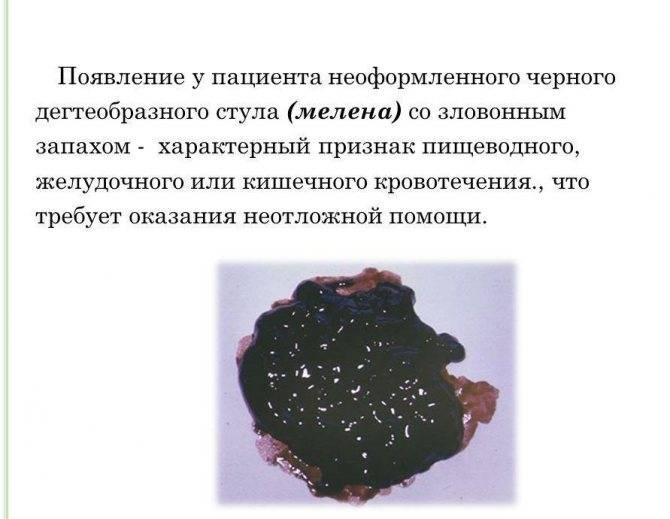 геморрой черного цвета