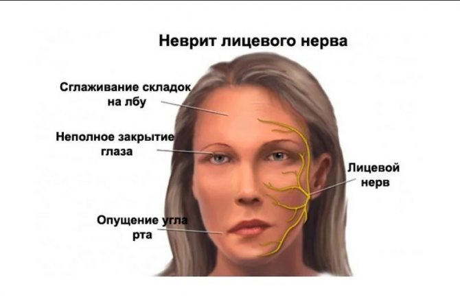 Воспаление нерва плечевого сустава