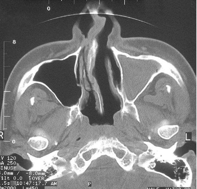 Компьютерная томография придаточных пазух носа: что показывает кт?