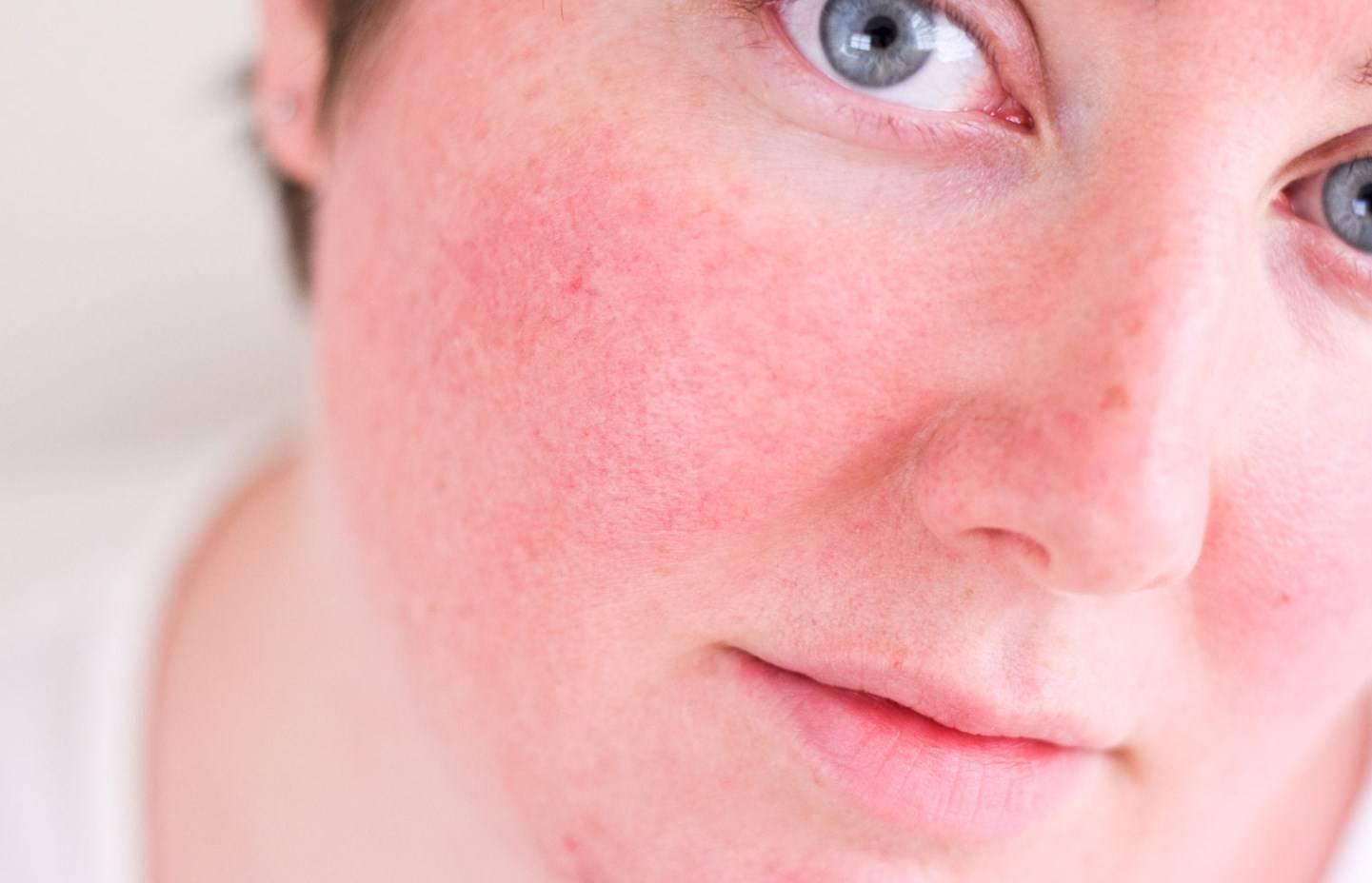 Крем от розацеа на лице: косметика и лечебные мази