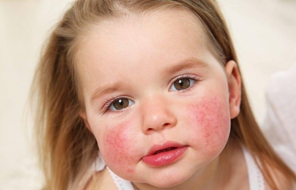 Как лечить солнечный дерматит: фото, медикаментозная терапия и действенные народные рецепты