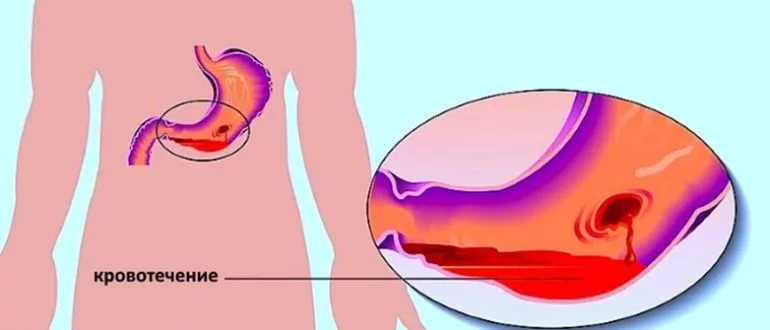 Желудочно-кишечное кровотечение: симптомы, первая помощь