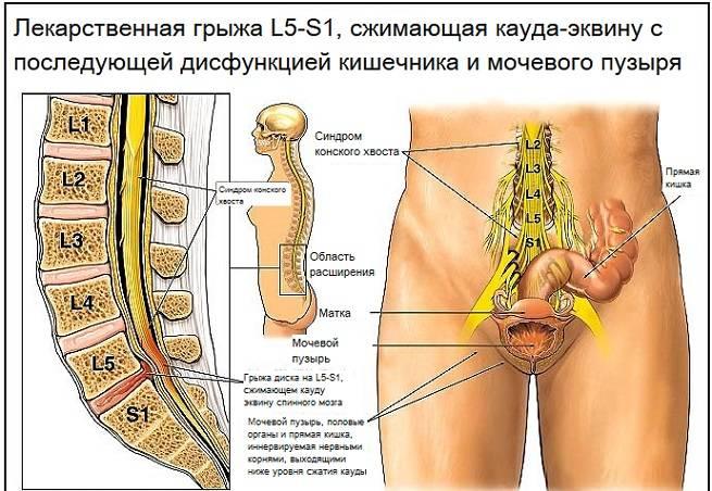 Конский хвост в позвоночнике симптомы и лечение