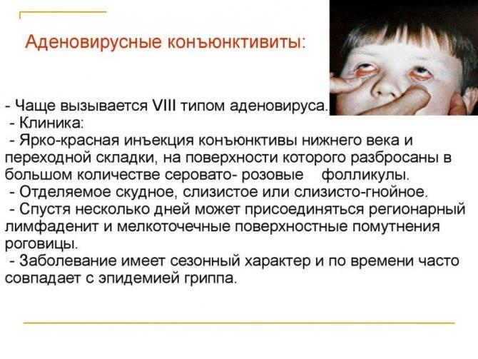 Болят глаза при простуде, орви, гриппе без температуры, причины светобоязни