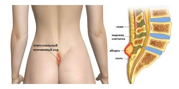 Эпителиальный копчиковый ход: лечение иссечением и без операции, как снять воспаление