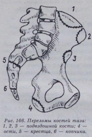 Примерно сколько срастается перелом плечевой кости сосмещением— осроках итравме