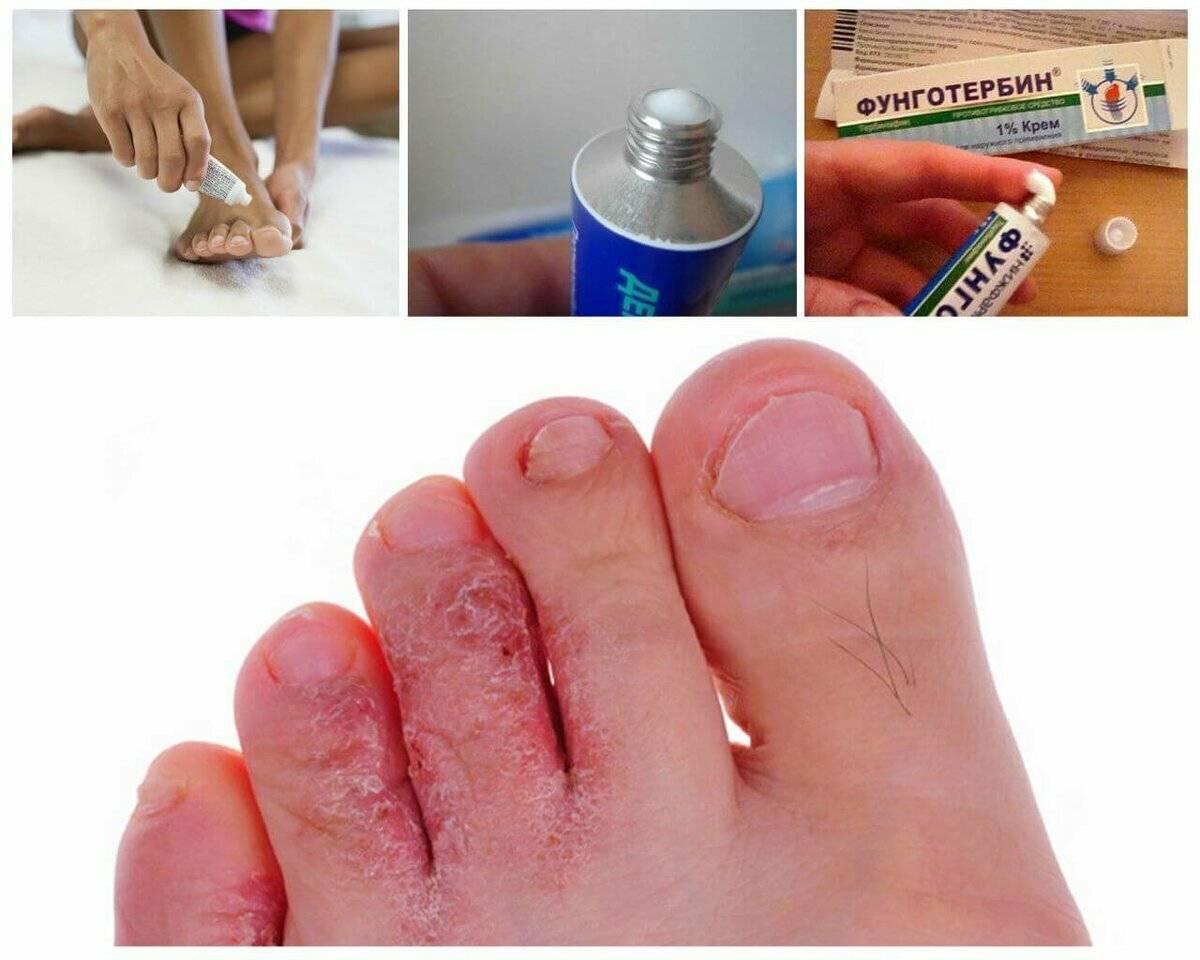 Начальная стадия грибка ногтей на ногах и руках. лечение