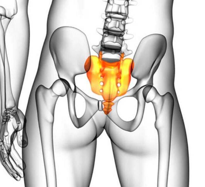 Перелом крестца: последствия, лечение, что вызывает травму