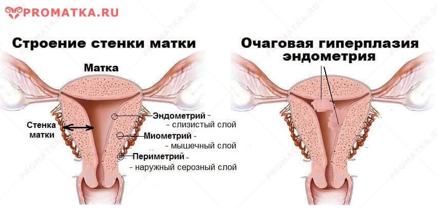 Признаки и методы лечения серозометры в постменопаузе
