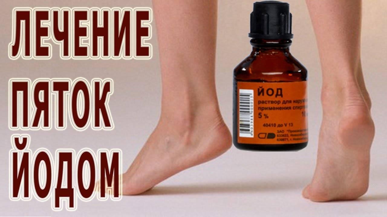 Лечение пяточной шпоры в домашних условиях: эффективные средства