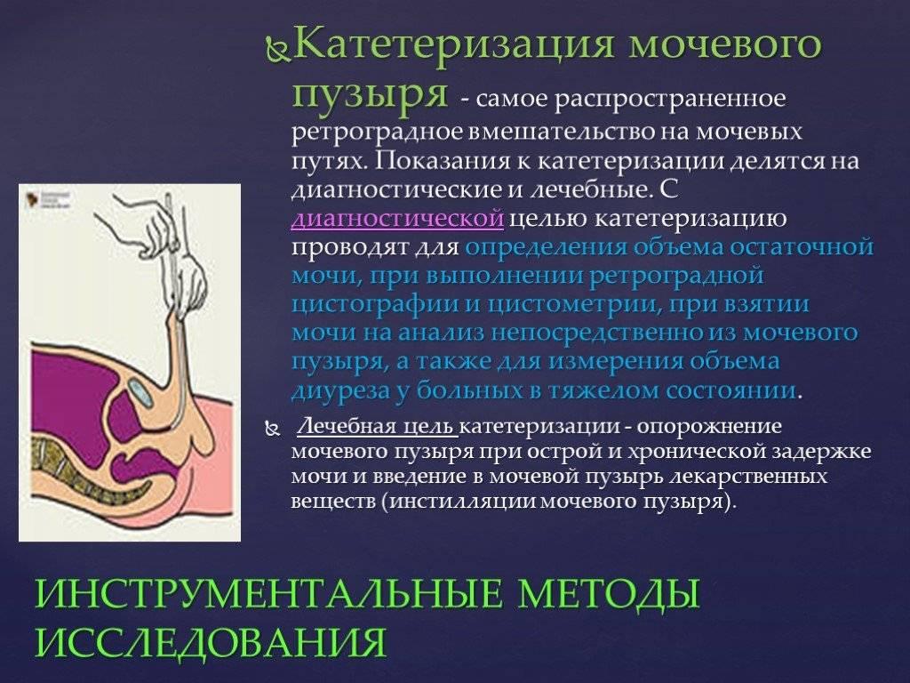 Катетеризация мочевого пузыря: показания и порядок проведения