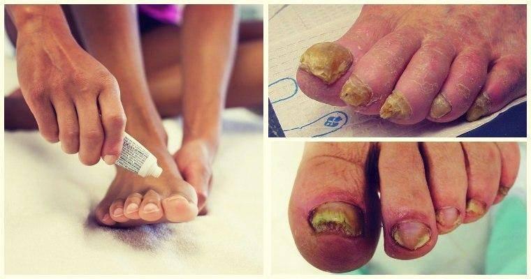 Грибок на ногах: симптомы, лечение, 6 шт фото, причины и профилактика
