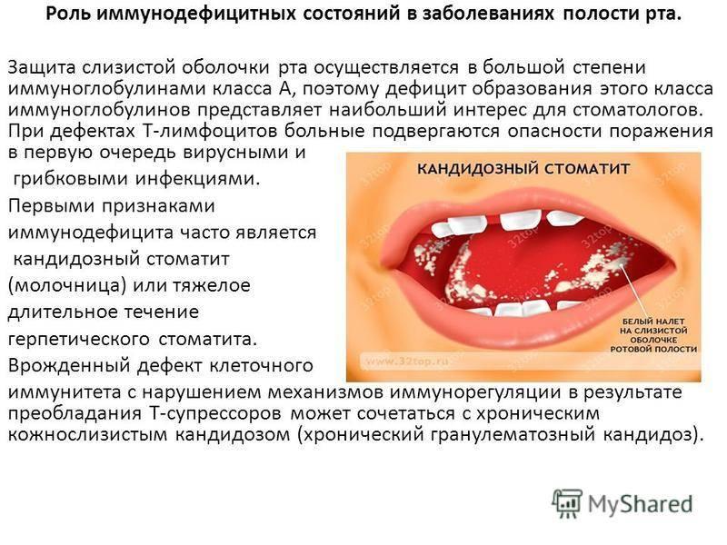 """Методические рекомендации к практическим занятиям по разделу """"заболевания слизистой оболочки полости рта"""" (для студентов 5 курса стоматологического факультета)"""