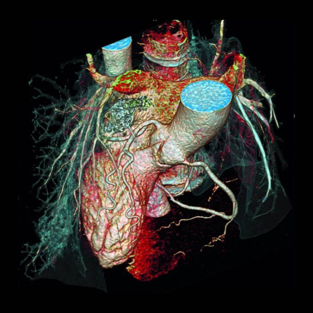 Мультиспиральная компьютерная томография коронарных артерий: метод диагностики, позволяющий сохранить здоровье и жизнь