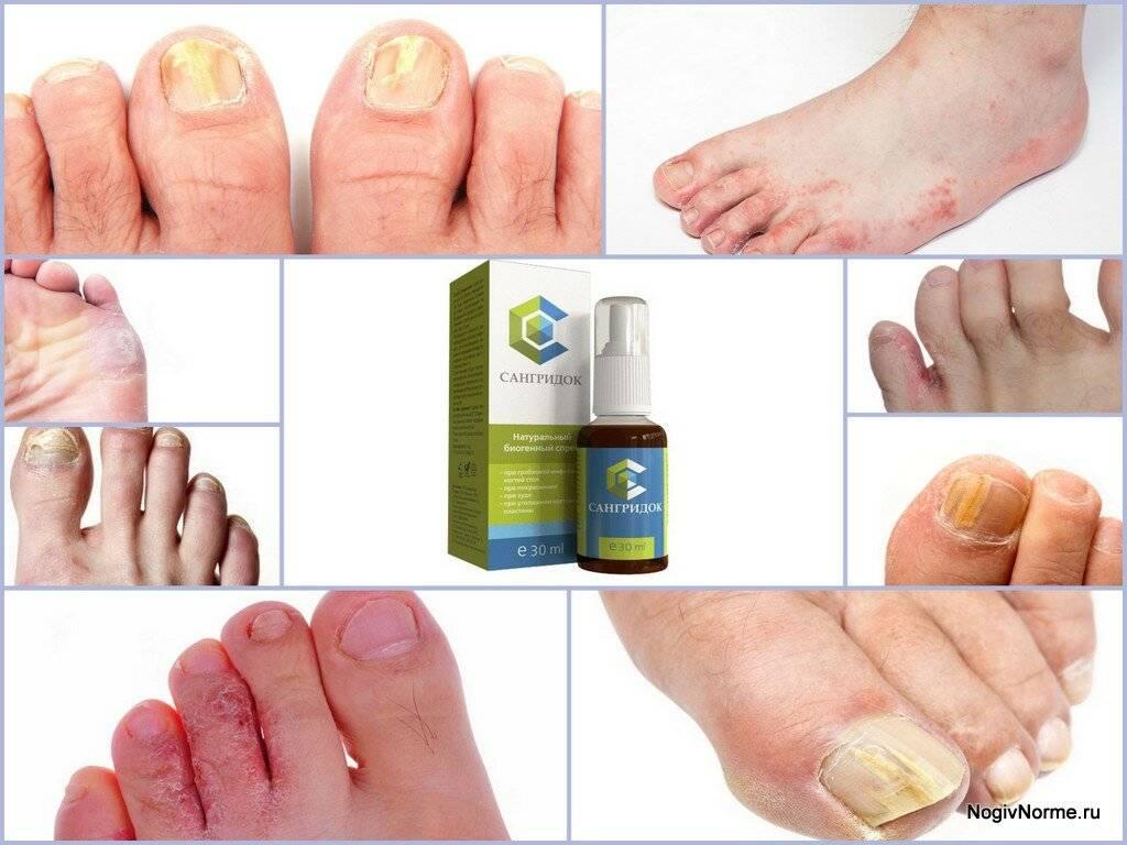 Чем лечить грибок ногтей на ногах? отзывы!