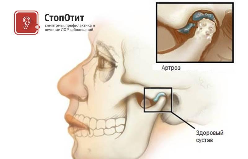 Сводит челюсть и скулы на лице: почему и что делать