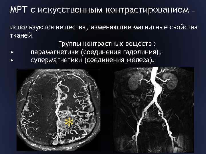 Что такое мрт головного мозга с контрастированием