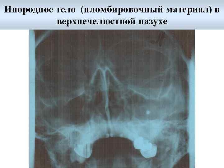 Катаральный гайморит: что это такое изменения верхнечелюстных пазух, симптомы и лечение, двусторонний или правосторонний острый синусит