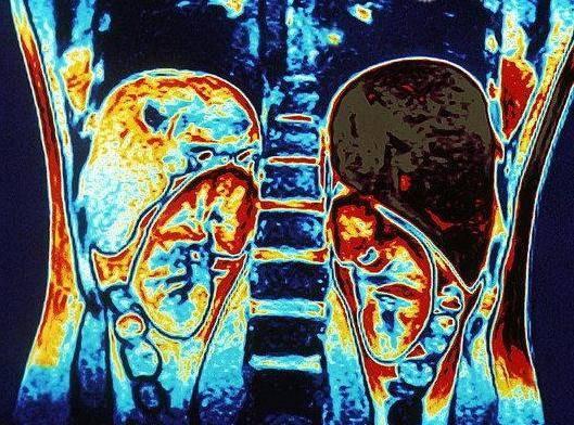 Мрт с внутривенным контрастированием: что это такое, в чем отличие от мрт без контрастирования