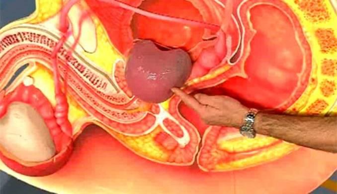 Член может болеть из за простатита приседания как профилактика простатита