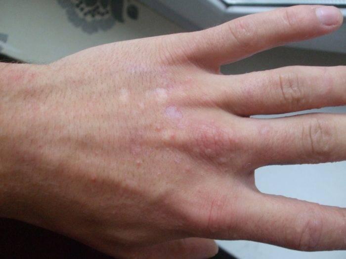 Зудящие водянистые пузырьки на пальцах рук (волдыри с жидкостью)