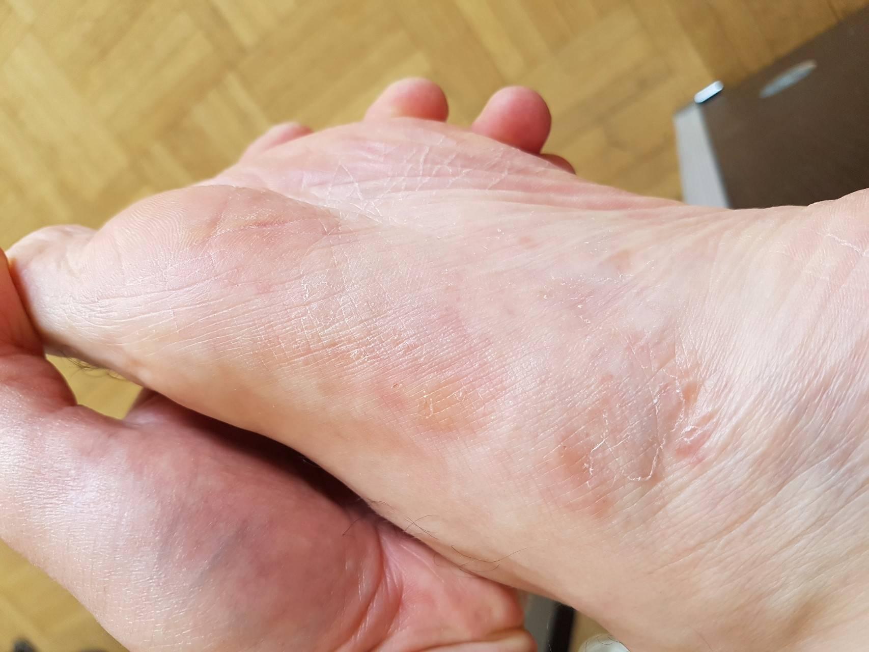 Экзема на ногах - лечение в домашних условиях, причины заболевания, фото