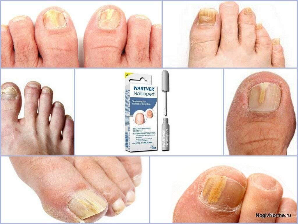 Грибок на ногах – лечение грибка стопы народными средствами в домашних условиях
