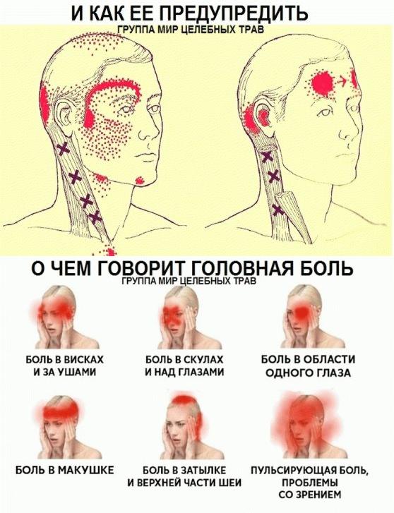Болит левый висок головы почему: симптомы, причины, диагностика, методы лечения,  как оказать первую помощь