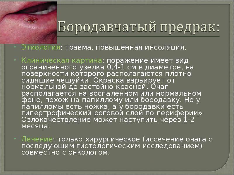 12.3.2.2. гнойничковые заболевания