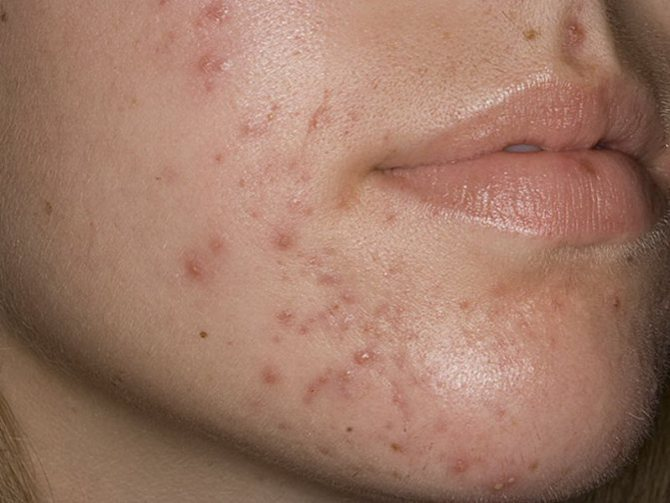 Как победить сыпь на лице – советы косметологов