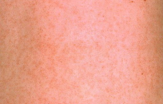 Розеола у детей: симптомы и лечение, фото, прогноз