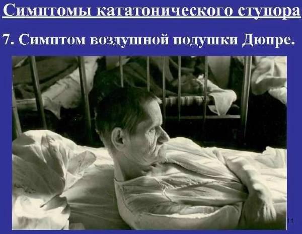 Кататонический синдром, лечение, причины, симптомы,  профилактика.