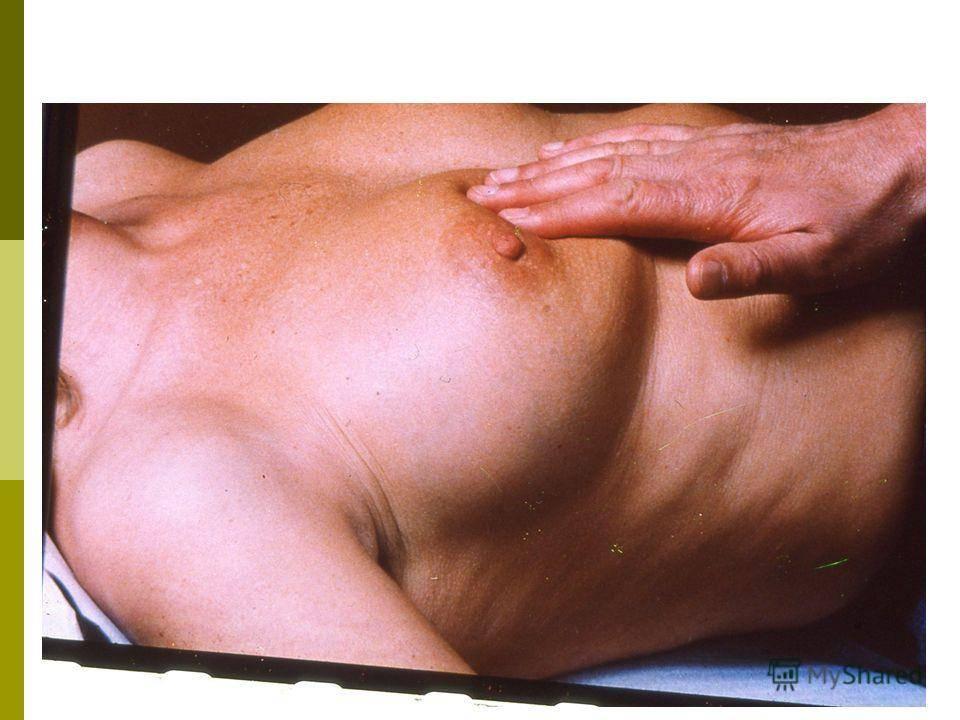 Мастит — симптомы, лечение, народные средства при мастите, профилактика мастита. как лечить мастит в домашних условиях?