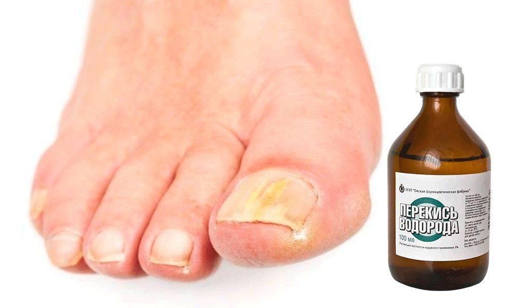 Быстрое лечение грибка на ногах в домашних условиях