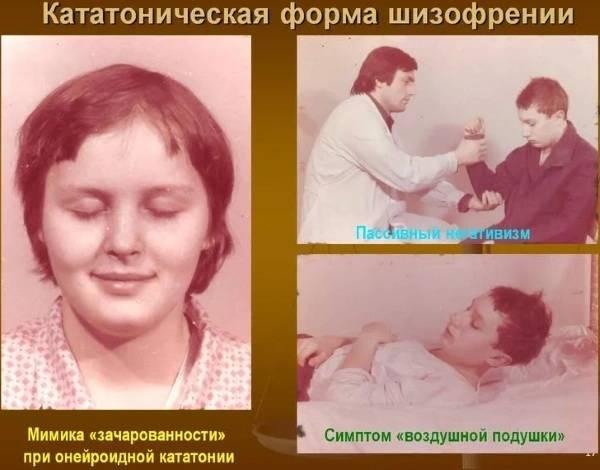 Кататонический ступор у детей, взрослых: что это такое, симптомы расстройства, состояние, лечение