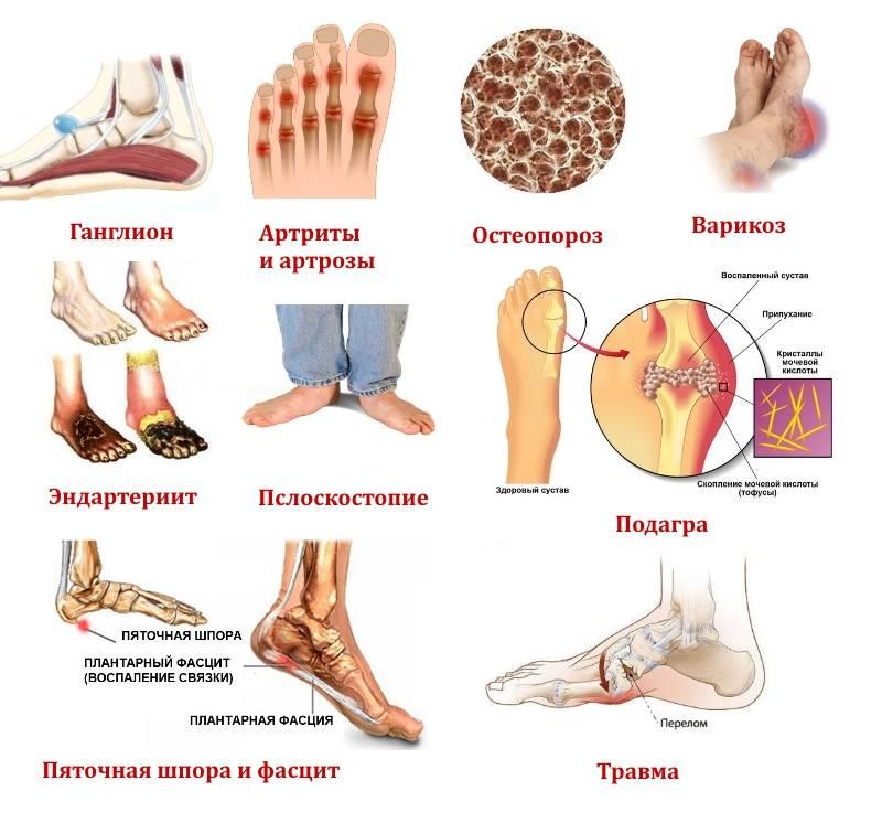 Методы народной медицины при боли в пяточной области ?