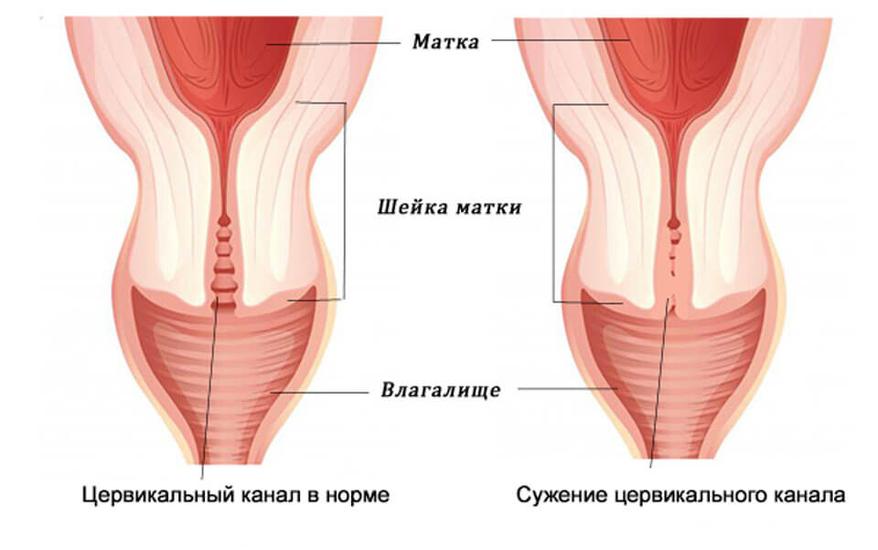 Серозометра в постменопаузе