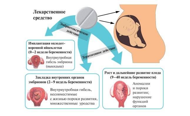 Головная боль при беременности | уроки для мам