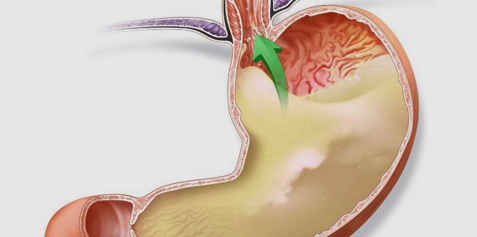 Диета при гэрб (рефлюкс эзофагите пищевода) - меню на неделю