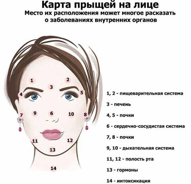 Виды мелких прыщиков на лице: милиумы и комедоны, красные маленькие пупырышки и воспалительная сыпь