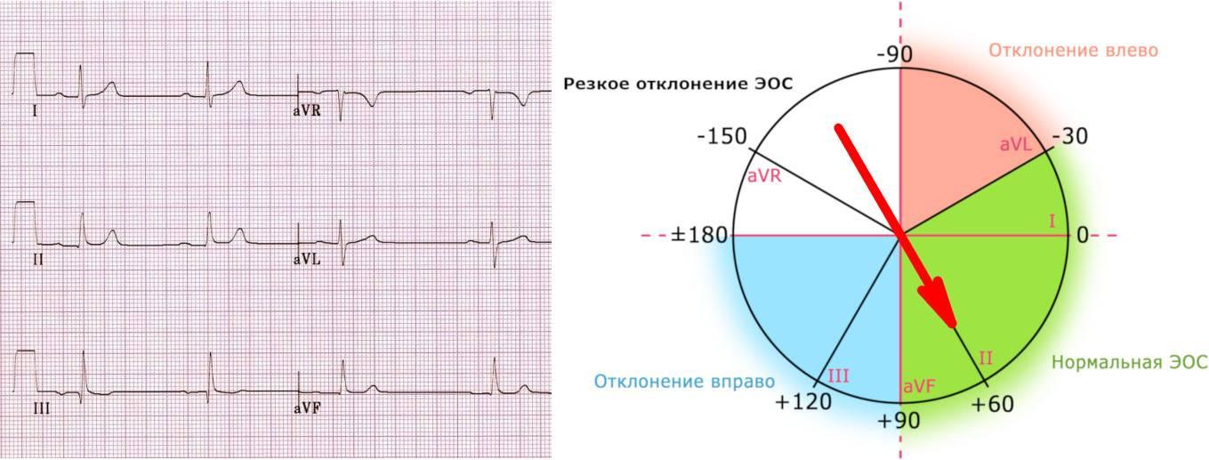 Электрическая ось сердца (эос): суть, норма положения и нарушения