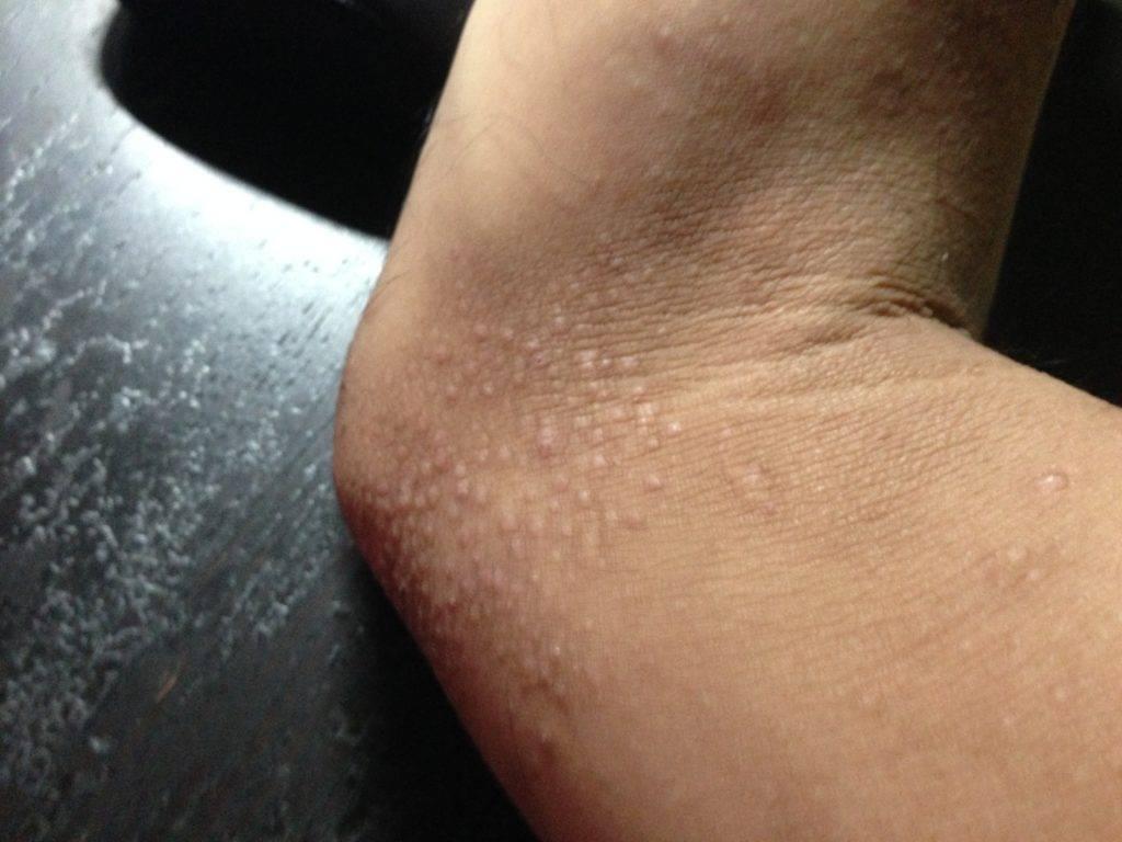 Красное пятно на коже чешется и шелушится: классификация и основные причины сыпи, возможные заболевания и их характеристики, методы лечения и профилактика рецидива