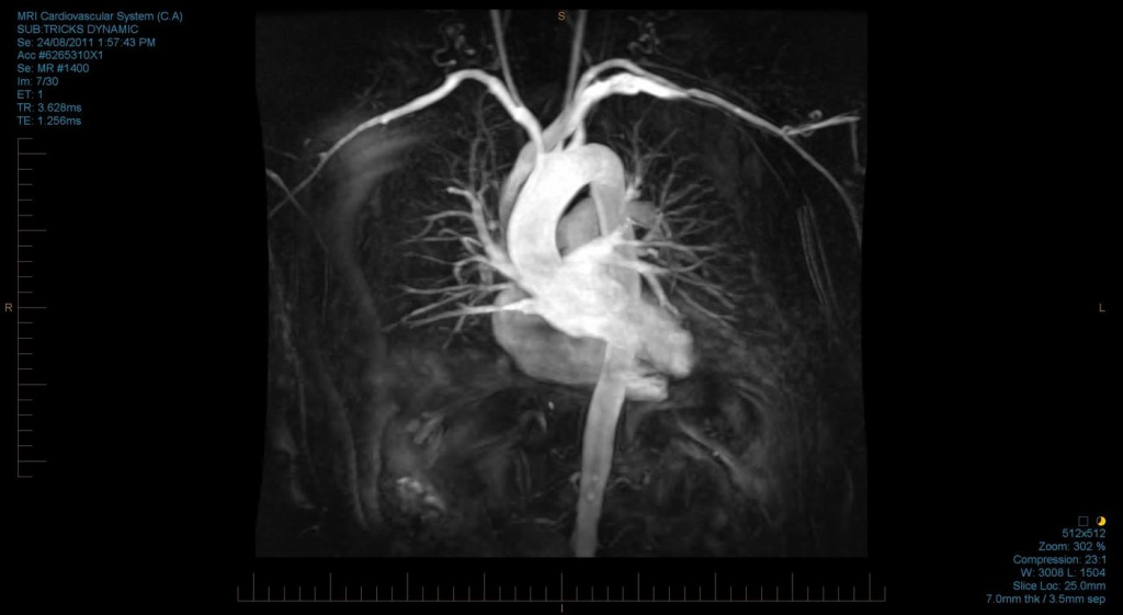 Кт и мскт сердца (коронарография) - что показывает исследование коронарных артерий?