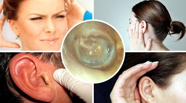 Что делать если болят уши при простуде? застудил ухо, чем лечить?