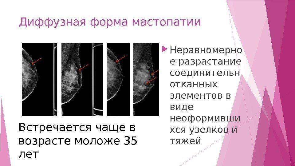 Каким должно быть лечение мастопатии народными средствами: обзор эффективных средств и отзывы женщин