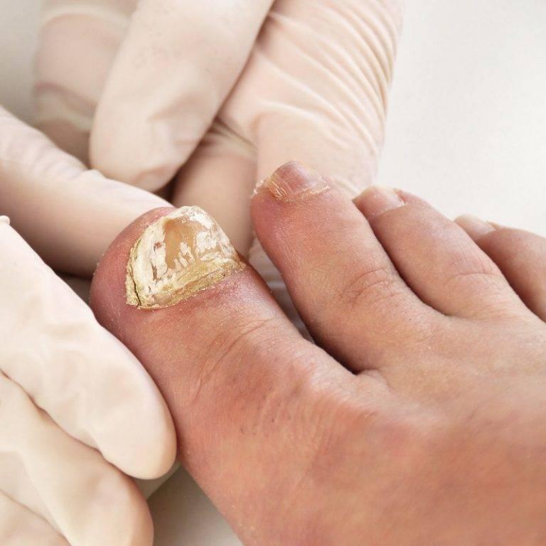 Комплексная терапия микоза ногтей на ногах, препараты и схема лечения грибка