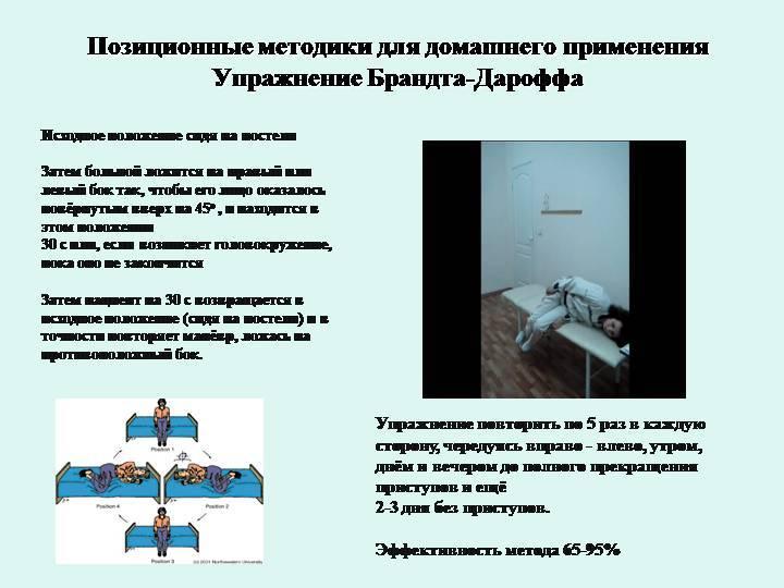 Манёвр эпли: лечение головокружения