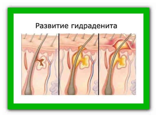 Как лечить чирей (фурункул)