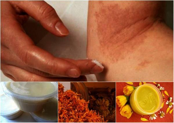 Лечение дерматита в домашних условиях народными средствами у взрослых и детей